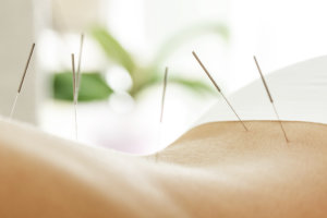 Acupuncture Owen Sound