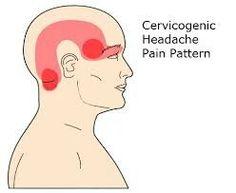 cervicogenic headache owen sound