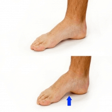 short foot, plantar fasica, pain, exercise