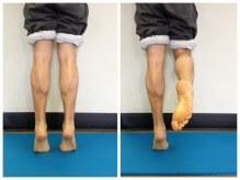 calf raise. strengthening, exercise, rehab