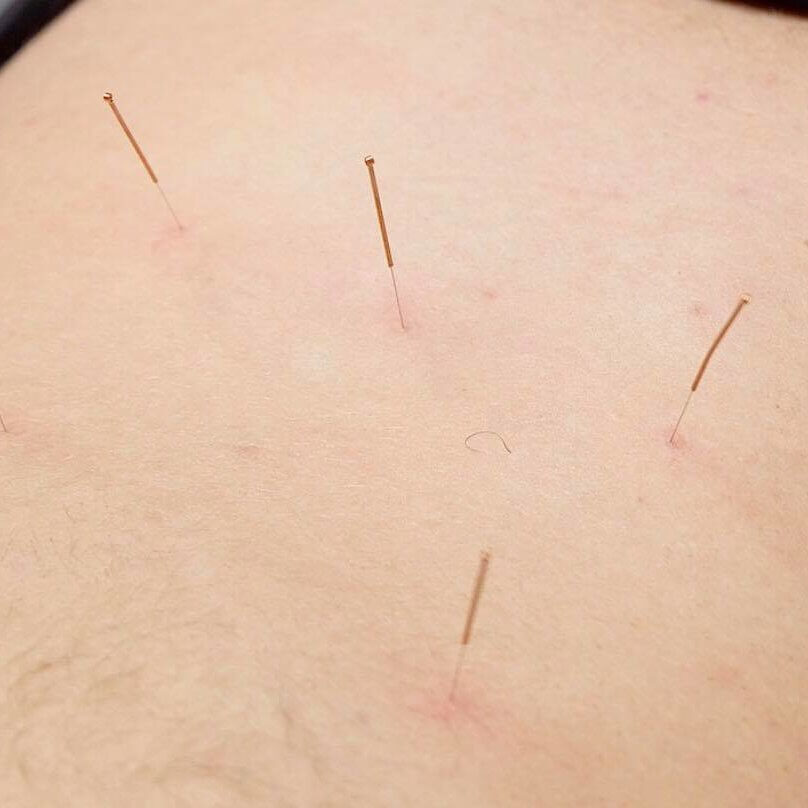 Acupuncture Service Owen sound